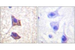 Image no. 1 for anti-Interleukin 6 Signal Transducer (Gp130, Oncostatin M Receptor) (IL6ST) (AA 748-797) antibody (ABIN1532554)