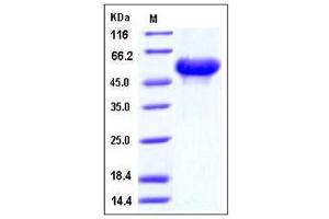 Image no. 1 for Arylsulfatase A (ARSA) (AA 1-506), (Extracellular Domain) (Active) protein (His tag) (ABIN2007159)