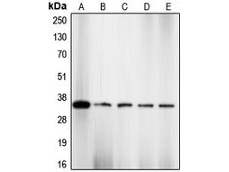 Western Blotting (WB) image for anti-Cyclin-Dependent Kinase 2 (CDK2) (pSer160) antibody (ABIN2705841)