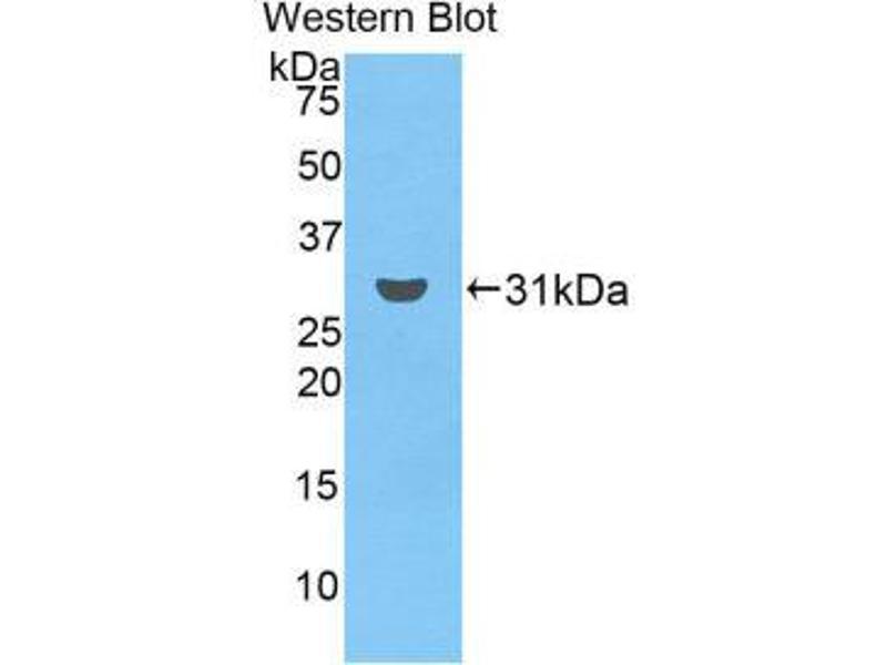 Western Blotting (WB) image for anti-Ficolin (Collagen/fibrinogen Domain Containing) 3 (Hakata Antigen) (FCN3) (AA 34-297) antibody (ABIN1858842)