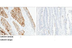 Image no. 1 for anti-Carcinoembryonic Antigen-Related Cell Adhesion Molecule 1 (Biliary Glycoprotein) (CEACAM1) (AA 1-428) antibody (ABIN1997555)