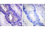 Immunohistochemistry (IHC) image for anti-PRKACA antibody (Protein Kinase A, alpha) (pThr197) (ABIN2499392)