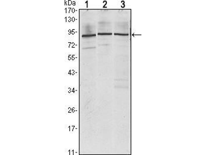 Western Blotting (WB) image for anti-Insulin-Like Growth Factor 2 MRNA Binding Protein 3 (IGF2BP3) antibody (ABIN969208)