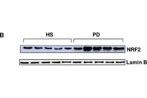 Image no. 7 for anti-Nuclear Factor (erythroid-Derived 2)-Like 2 (NFE2L2) (Internal Region) antibody (ABIN2855612)