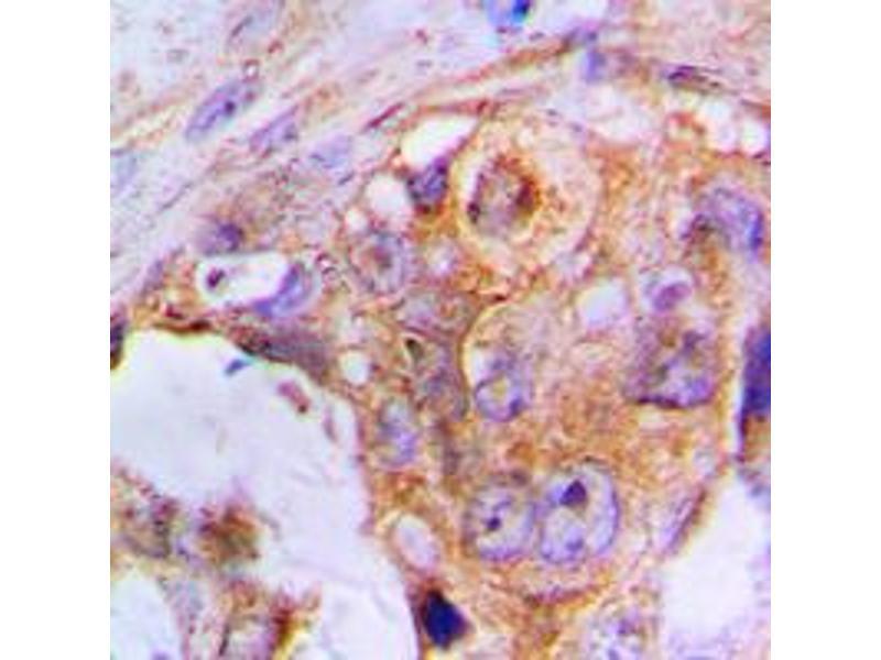 Immunohistochemistry (IHC) image for anti-Apoptotic Peptidase Activating Factor 1 (APAF1) (C-Term) antibody (ABIN2704483)
