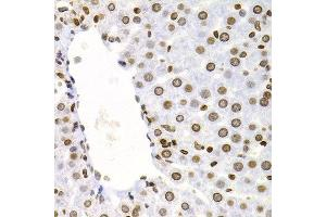 Image no. 10 for anti-Nuclear Factor of kappa Light Polypeptide Gene Enhancer in B-Cells 2 (NFKB2) antibody (ABIN3017388)