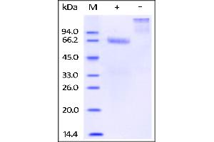 SDS-PAGE (SDS) image for Mesothelin (MSLN) (Active) protein (Fc Tag,Biotin) (ABIN2444166)
