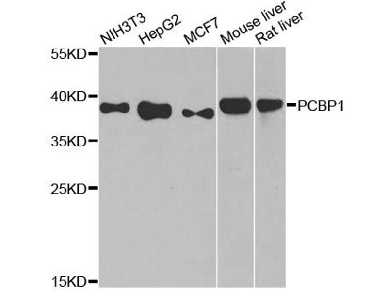 Image no. 1 for anti-Poly(rC) Binding Protein 1 (PCBP1) antibody (ABIN6566930)