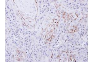 Immunohistochemistry (Paraffin-embedded Sections) (IHC (p)) image for anti-Opioid Receptor, mu 1 (OPRM1) (N-Term) antibody (ABIN441215)