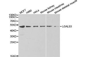 Western Blotting (WB) image for anti-Lectin, Galactoside-Binding, Soluble, 3 (LGALS3) (pSer3) antibody (ABIN5663915)