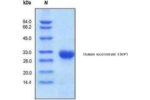 SDS-PAGE (SDS) image for TIMP Metallopeptidase Inhibitor 1 (TIMP1) (Active) protein (His tag) (ABIN1981492)