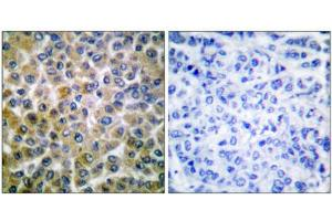 Image no. 4 for anti-SMAD, Mothers Against DPP Homolog 1 (SMAD1) (Ser465) antibody (ABIN1847896)
