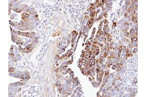 Immunohistochemistry (Paraffin-embedded Sections) (IHC (p)) image for anti-Dynactin 1 (DCTN1) (C-Term) antibody (ABIN440925)