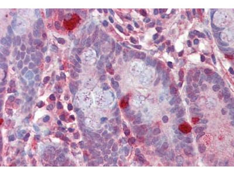 Immunohistochemistry (Paraffin-embedded Sections) (IHC (p)) image for anti-Regulator of G-Protein Signaling 1 (RGS1) (AA 198-209) antibody (ABIN462280)
