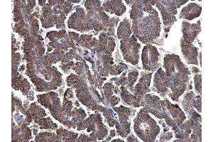 Immunohistochemistry (IHC) image for anti-Metadherin (MTDH) (Center) antibody (ABIN2854801)