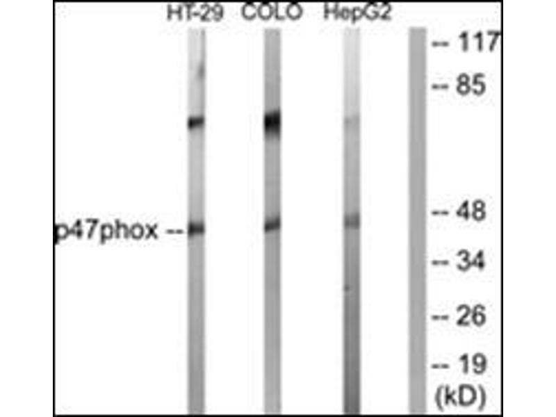 Western Blotting (WB) image for anti-Neutrophil Cytosol Factor 1 (NCF1) (C-Term) antibody (ABIN5611556)