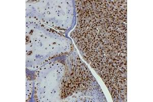 Immunohistochemistry (Paraffin-embedded Sections) (IHC (p)) image for anti-High-Mobility Group Box 1 (HMGB1) (A Box Domain), (AA 9-79), (full length) antibody (ABIN4319340)