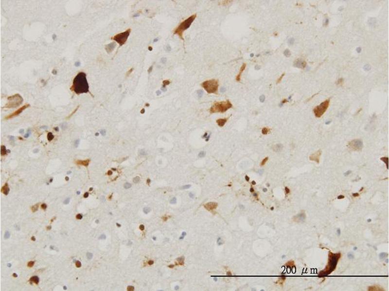Immunohistochemistry (IHC) image for anti-Pleiotrophin (PTN) (AA 45-155) antibody (ABIN394508)
