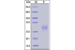 Image no. 2 for Inducible T-Cell Co-Stimulator (ICOS) (AA 21-141) (Active) protein (His tag,AVI tag,Biotin) (ABIN6731299)