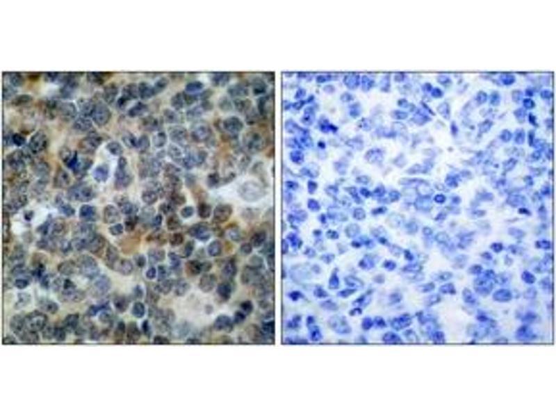 Immunohistochemistry (IHC) image for anti-Vasodilator-Stimulated phosphoprotein (VASP) (AA 206-255), (pSer239) antibody (ABIN1531996)
