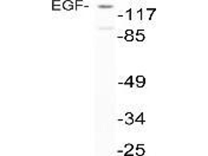 Western Blotting (WB) image for anti-EGF antibody (Epidermal Growth Factor) (ABIN498560)