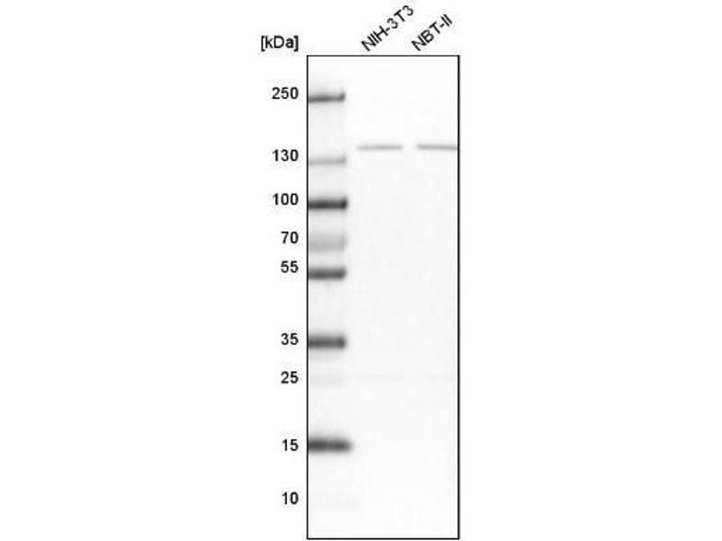 Western Blotting (WB) image for anti-Protein Phosphatase 2, Regulatory Subunit B'', alpha (PPP2R3A) antibody (ABIN4347100)
