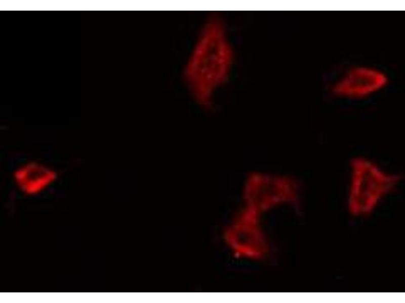 Immunofluorescence (fixed cells) (IF/ICC) image for anti-Coagulation Factor II (thrombin) Receptor (F2R) antibody (ABIN6265563)