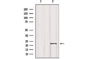Image no. 4 for anti-BCL2-Interacting Killer (Apoptosis-Inducing) (BIK) antibody (ABIN6260261)