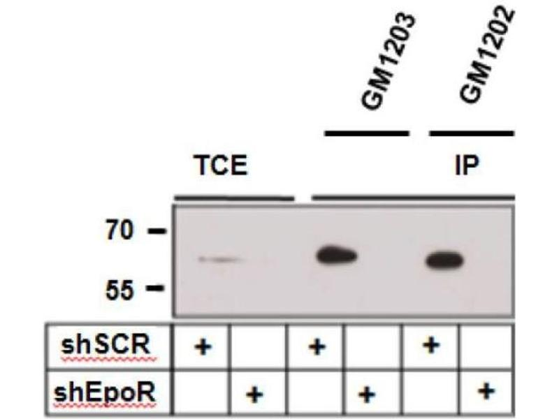 Western Blotting (WB) image for anti-Erythropoietin Receptor (EPOR) antibody (ABIN1720915)