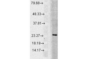 Western Blotting (WB) image for anti-RAB5 antibody (RAB5A, Member RAS Oncogene Family) (ABIN361846)