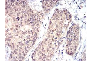 Immunohistochemistry (IHC) image for anti-RAD23 Homolog A (S. Cerevisiae) (RAD23A) (AA 1-363) antibody (ABIN5542637)