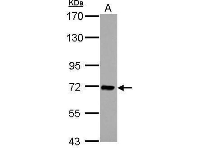 Western Blotting (WB) image for anti-IL1RAP antibody (Interleukin 1 Receptor Accessory Protein) (Center) (ABIN2855843)