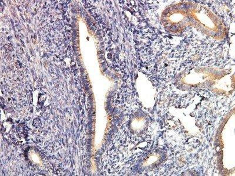Immunohistochemistry (Paraffin-embedded Sections) (IHC (p)) image for anti-V-Akt Murine Thymoma Viral Oncogene Homolog 1 (AKT1) antibody (ABIN4278998)