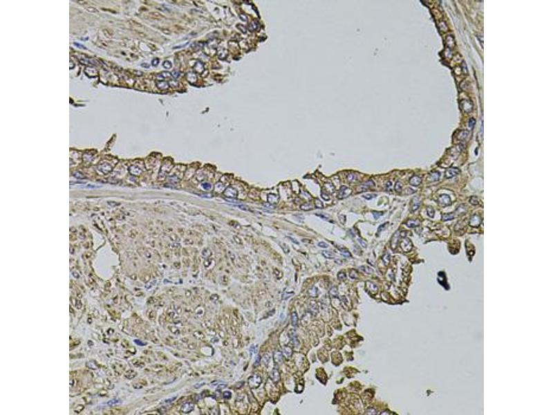 Immunohistochemistry (Paraffin-embedded Sections) (IHC (p)) image for anti-Microtubule-Associated Protein 1B (MAP1B) antibody (ABIN5971696)