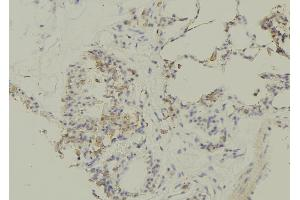 Image no. 1 for anti-Solute Carrier Family 5 (Sodium/glucose Cotransporter), Member 1 (SLC5A1) (pSer335) antibody (ABIN6269517)