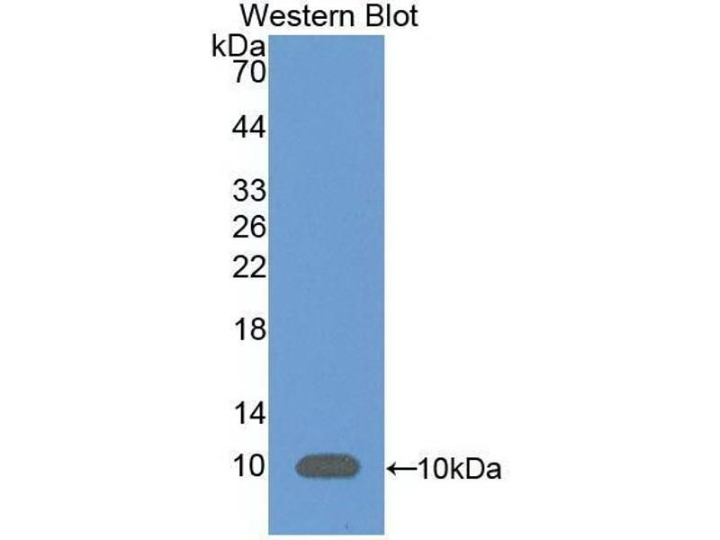 Western Blotting (WB) image for anti-Complement Component 5a (C5a) (AA 679-755) antibody (ABIN6002813)