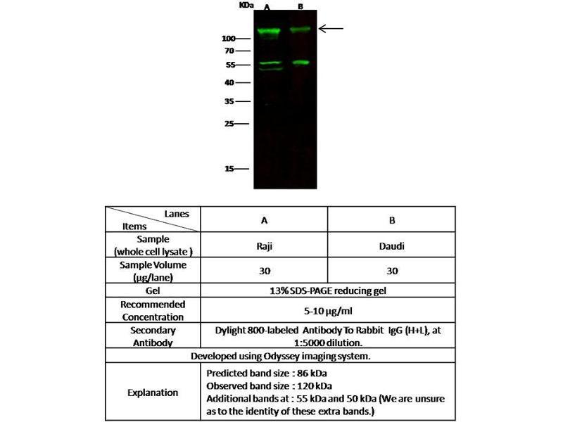 Western Blotting (WB) image for anti-Membrane Metallo-Endopeptidase (MME) (AA 52-750) antibody (ABIN5507846)