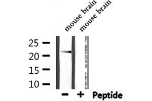 Image no. 1 for anti-Cytochrome B-245, alpha Polypeptide (CYBA) antibody (ABIN6261136)