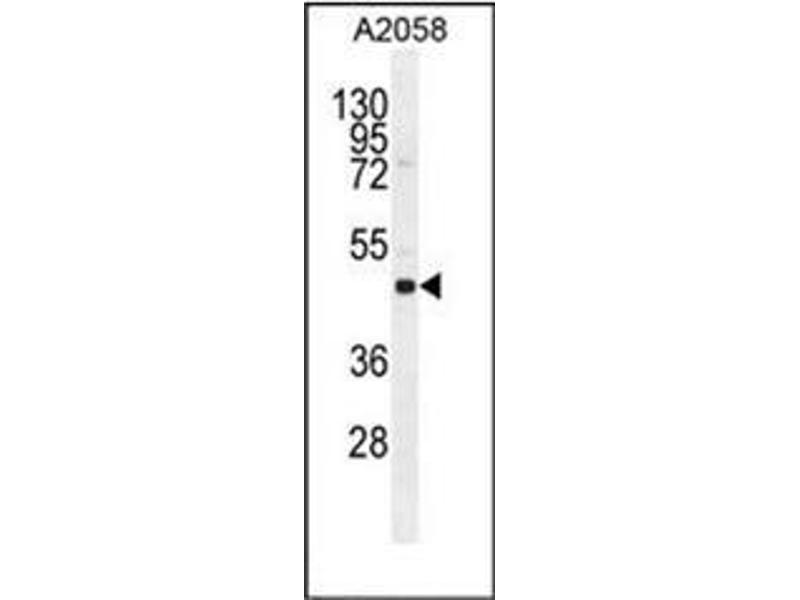 Western Blotting (WB) image for anti-SOCS4 antibody (Suppressor of Cytokine Signaling 4) (AA 234-262) (ABIN954879)