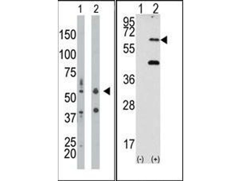 image for anti-Eukaryotic Translation Initiation Factor 2-alpha Kinase 2 (EIF2AK2) (N-Term) antibody (ABIN360663)
