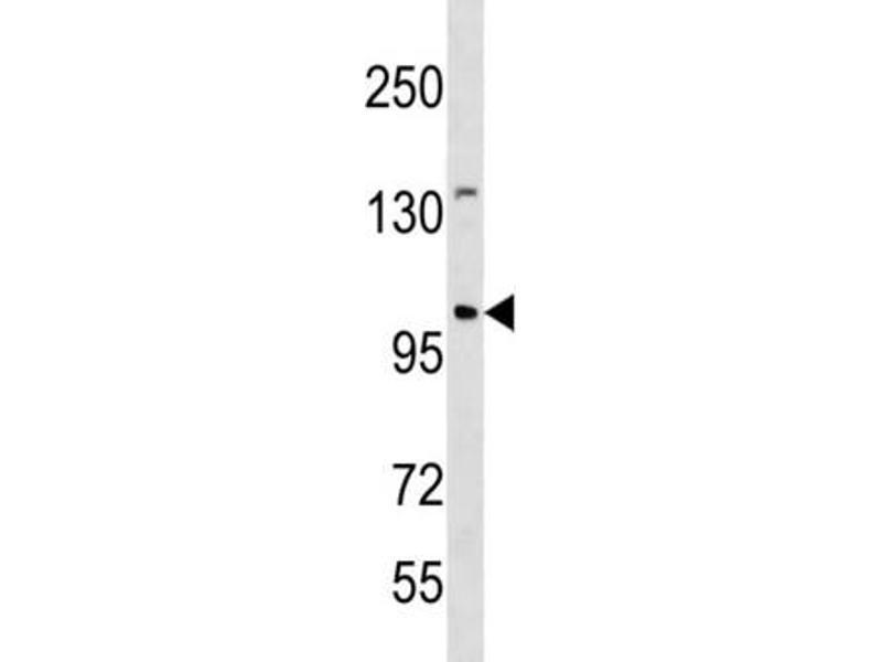 Image no. 2 for anti-Establishment of Cohesion 1 Homolog 1 (S. Cerevisiae) (ESCO1) antibody (ABIN3004513)