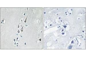 Immunohistochemistry (IHC) image for anti-CAMK2B antibody (Calcium/calmodulin-Dependent Protein Kinase (CaM Kinase) II beta) (pThr286) (ABIN1531792)