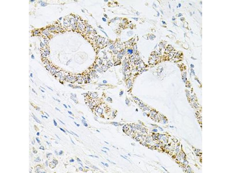 Image no. 2 for anti-Insulin Receptor Substrate 1 (IRS1) antibody (ABIN6566530)