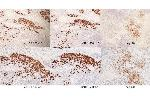Immunohistochemistry (Paraffin-embedded Sections) (IHC (p)) image for anti-Colony Stimulating Factor 1 Receptor (CSF1R) (AA 694-744), (pTyr723) antibody (ABIN683788)