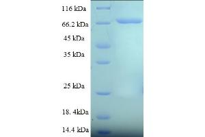 Image no. 1 for Cytoplasmic Polyadenylation Element Binding Protein 1 (CPEB1) (AA 1-486), (full length) protein (His-SUMO Tag) (ABIN5711755)