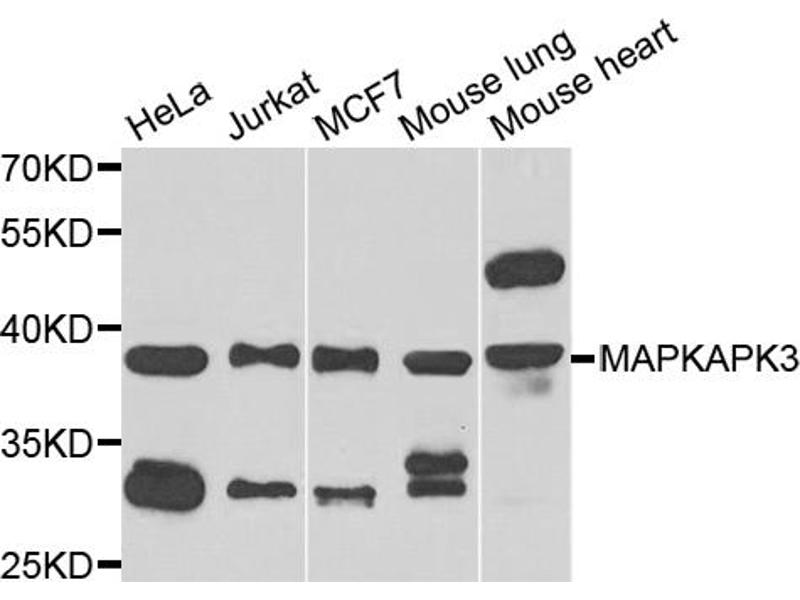 Western Blotting (WB) image for anti-Mitogen-Activated Protein Kinase-Activated Protein Kinase 3 (MAPKAPK3) antibody (ABIN3046865)