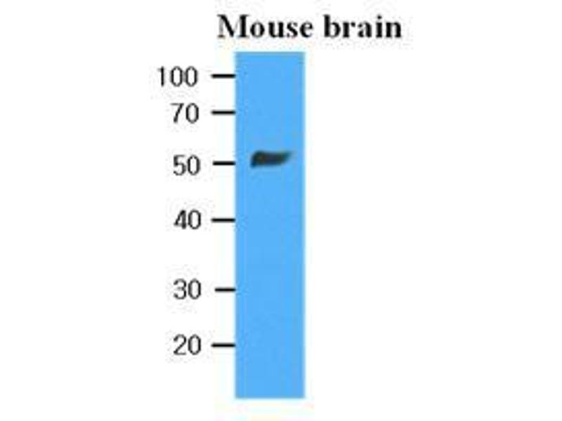 Western Blotting (WB) image for anti-TUBB2B antibody (Tubulin, beta 2B) (ABIN567630)