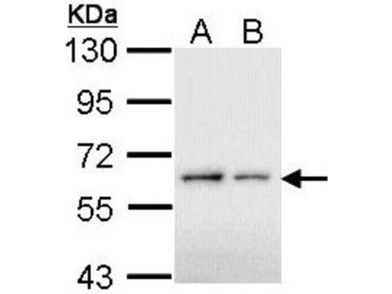 Western Blotting (WB) image for anti-BCL3 antibody (B-Cell CLL/lymphoma 3) (N-Term) (ABIN4283779)