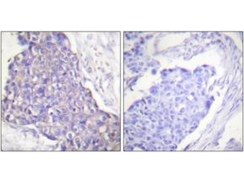 Immunohistochemistry (IHC) image for anti-CD40 antibody (CD40 Molecule, TNF Receptor Superfamily Member 5) (ABIN1533424)