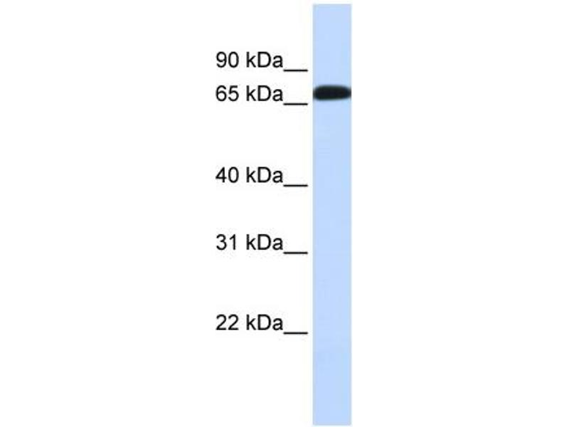 Western Blotting (WB) image for anti-Solute Carrier Family 6 (Neurotransmitter Transporter, GABA), Member 1 (SLC6A1) (Middle Region) antibody (ABIN502435)